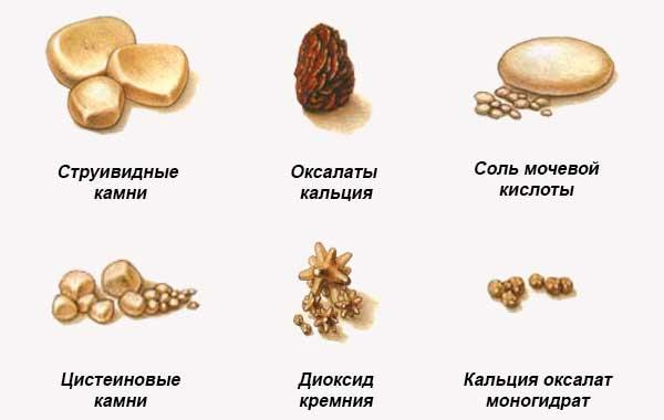 Разные виды камней в почках