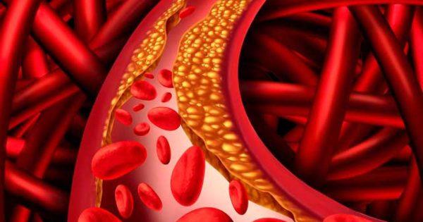 Продукты, снижающие холестерин и очищающие сосуды