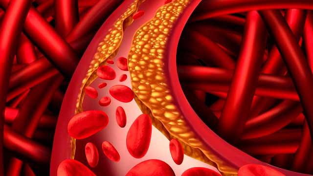 Какие продукты повышают холестерин в крови