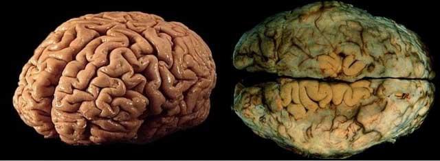 Мозг здорового человека и человека пьющего пиво