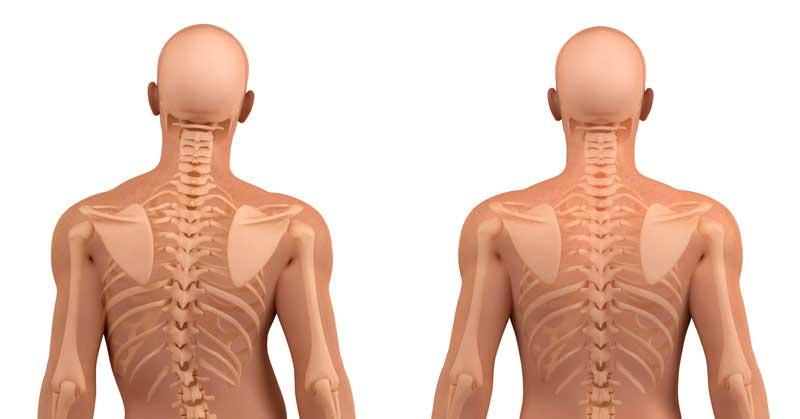 ЛФК при сколиозе. Симптомы сколиоза позвоночника у взрослых и детей