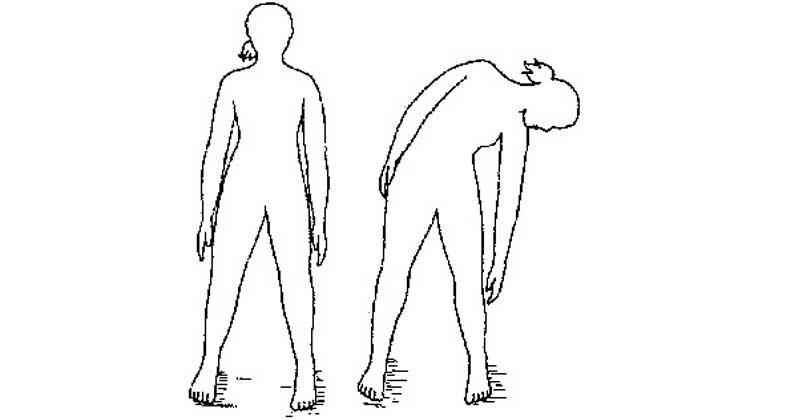 Упражнение 2 при сколиозе. Наклоны в бок
