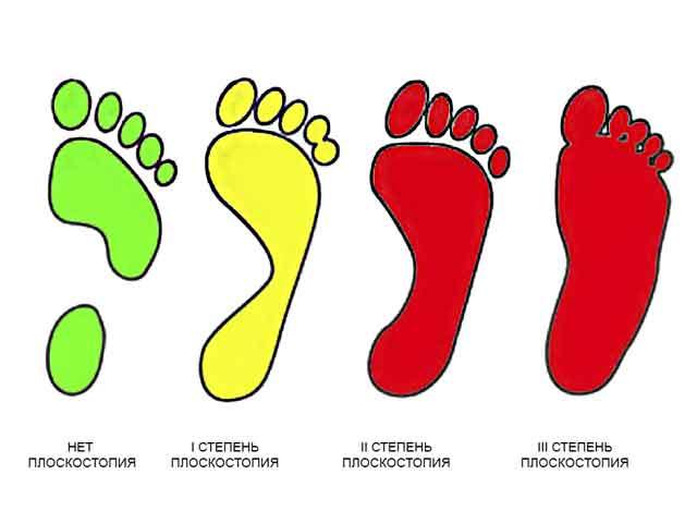 1,2, 3 степени плоскостопия. Что такое плоскостопие