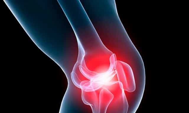 Лечебная физкультура (ЛФК) при артрозе коленного сустава