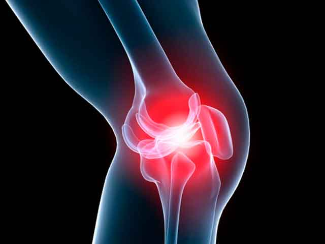 Комплекс упражнений при артрозе коленного сустава и диета при артрозе