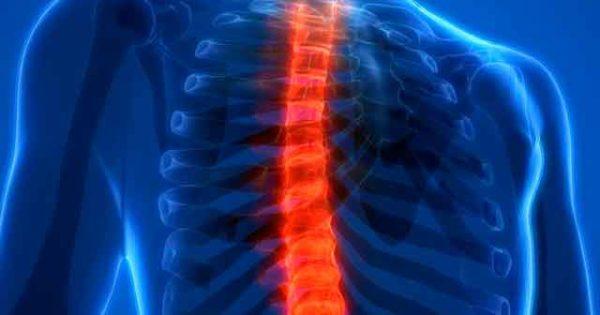 ЛФК, гимнастика и упражнения при грудном остеохондрозе