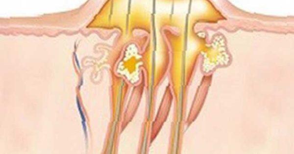 Как лечить фурункул в домашних условиях быстро, вылечить фурункулез дома