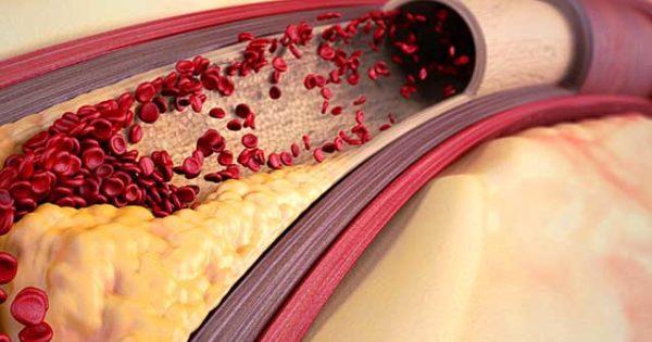 Диета при атеросклерозе сосудов головного мозга