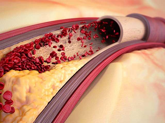 8 эффективных народных средств от атеросклероза сосудов