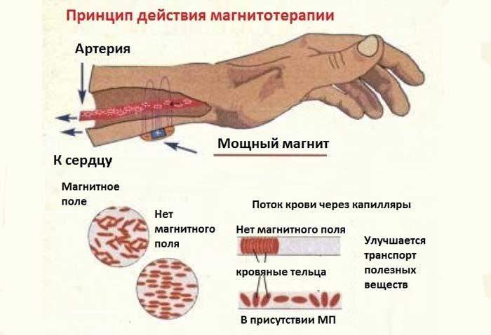 Магнитотерапия: показания к применению