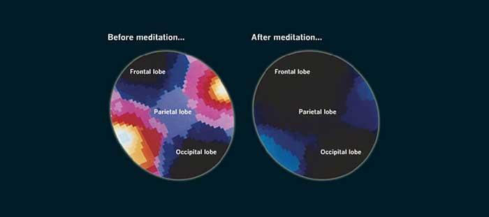 Мозг во время медитации