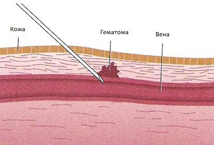 Народные средства от гематом