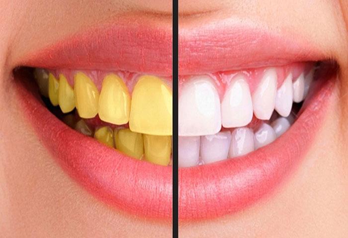 5 продуктов, которые окрашивают зубы