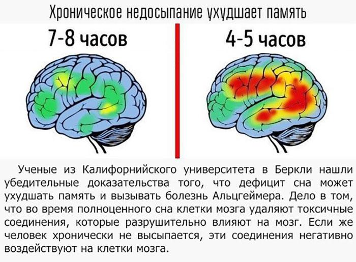Как сон влияет на мозг